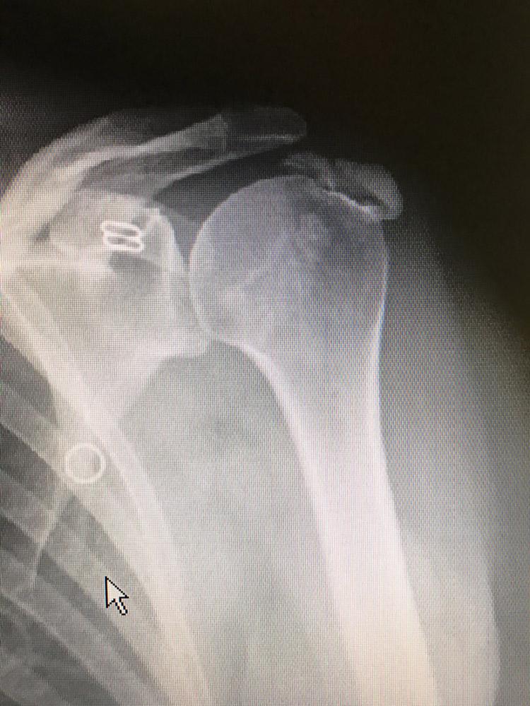 La calcificazioni della spalla